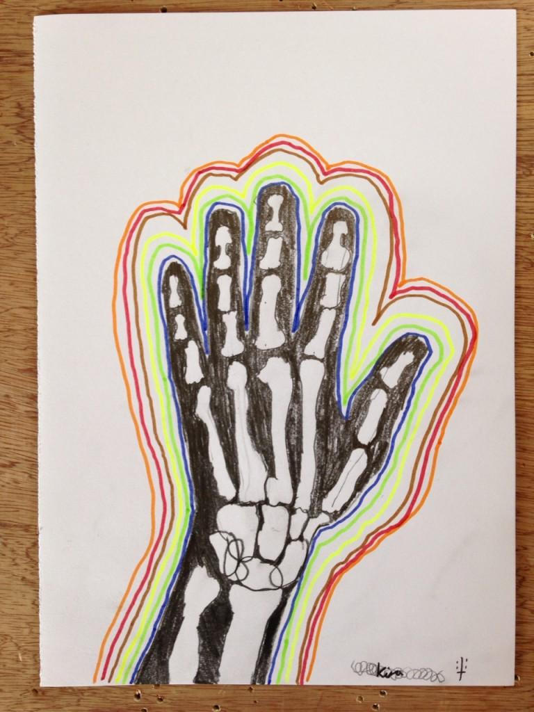 HAND_XRAY_01