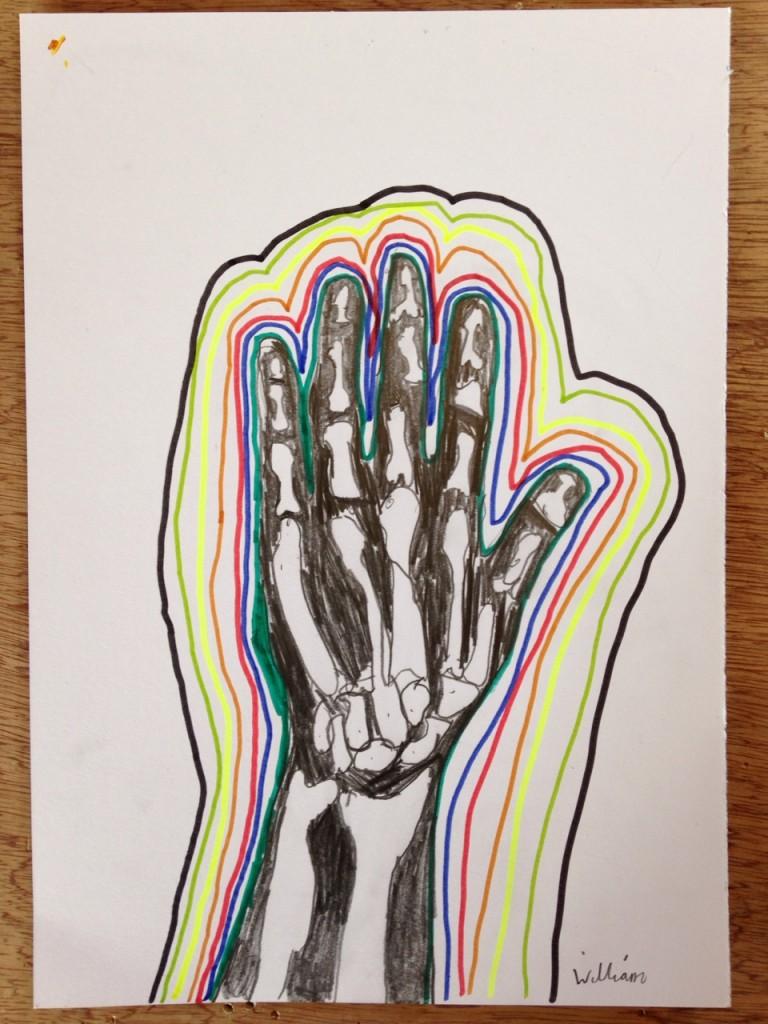 HAND_XRAY_02