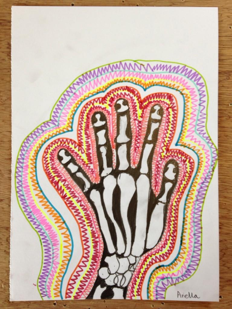 HAND_XRAY_03