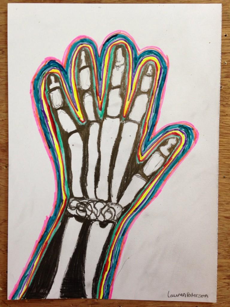 HAND_XRAY_04