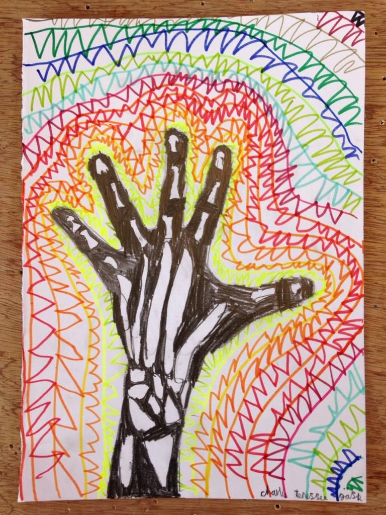 HAND_XRAY_05