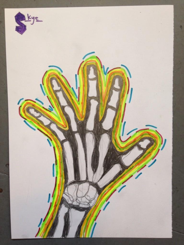HAND_XRAY_06