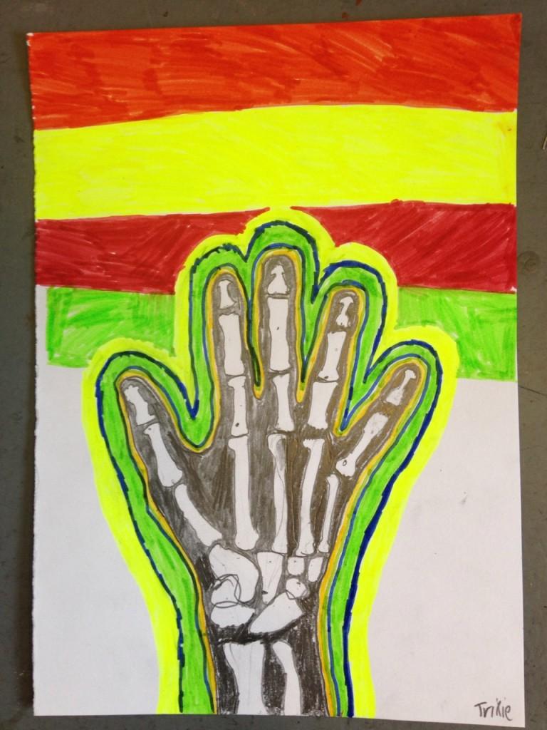 HAND_XRAY_08